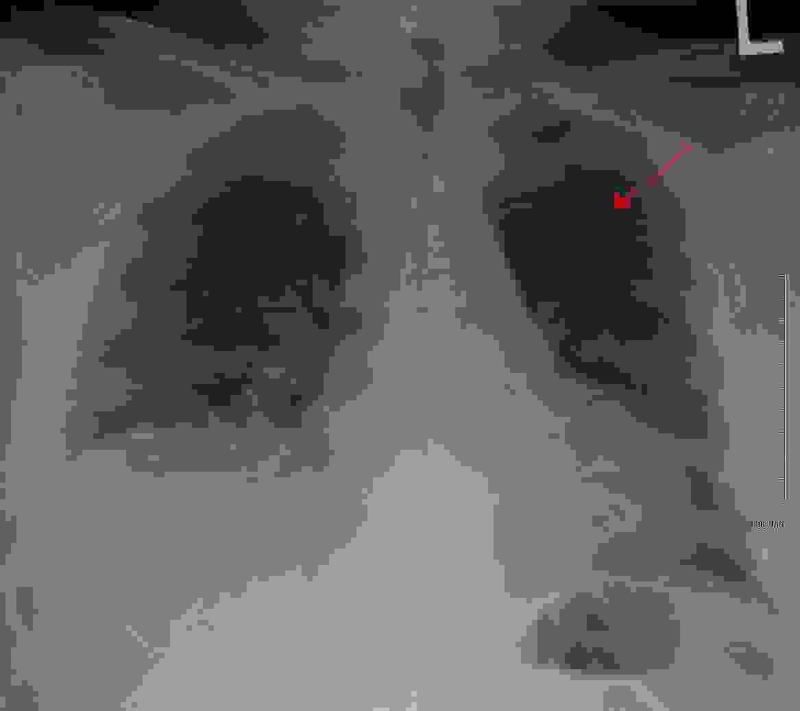 شكلُ ذاتِ الرئة في الصورةِ الشعاعية